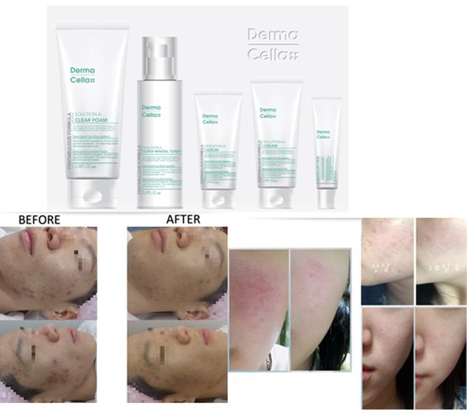 Dermacella Cosmetic